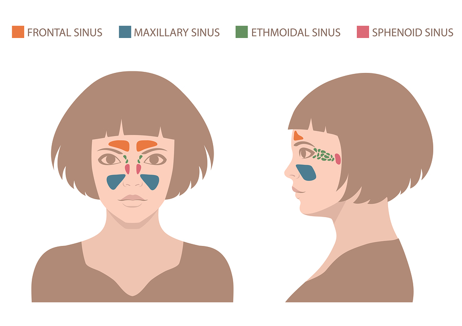 Natural Remedies For Sinus Infections Mother Of Health