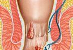 best hemorrhoid treatment