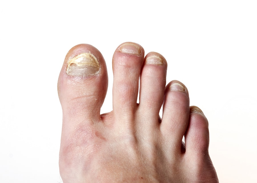 All Natural Home Remedies For Toenail Fungus