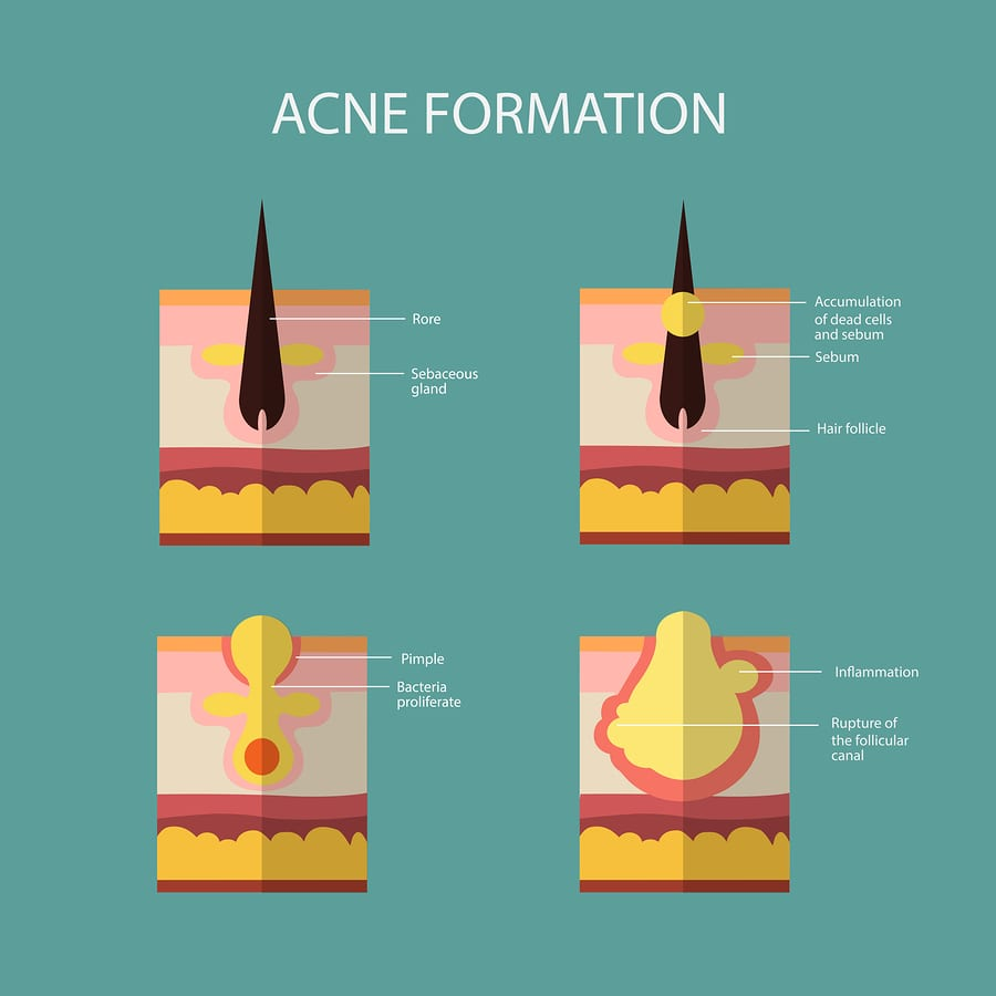 natural remedies for acne - acne formation