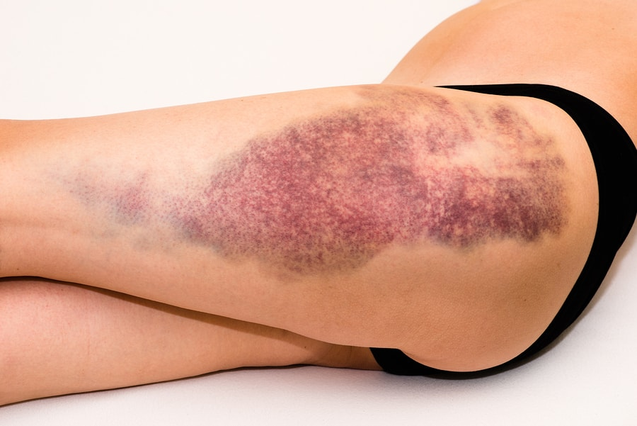 How to Heal a Bruise Quickly