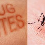 ways to treat bug bites