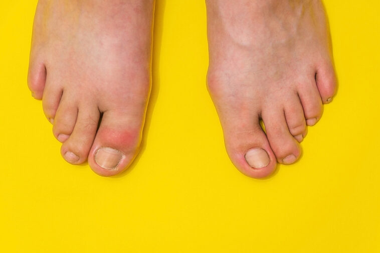 natural remedies for gout